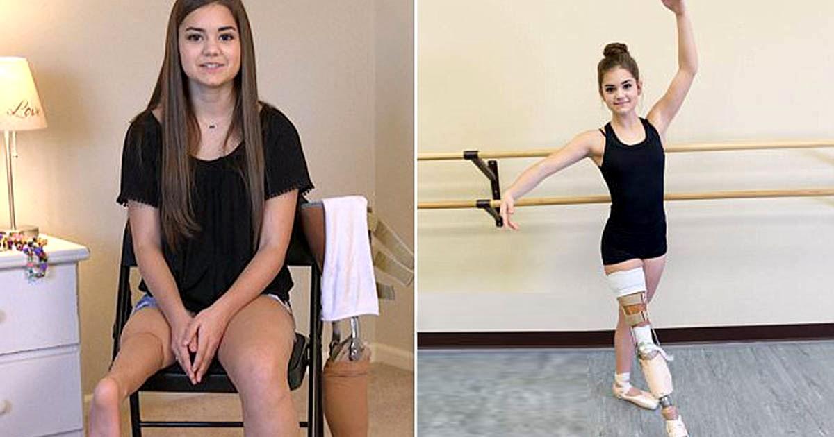90d9fd8bcdf 15χρονη μπαλαρίνα που έχασε το πόδι της από καρκίνο, δεν χαρίστηκε ...